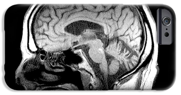 Abnormal iPhone Cases - Mri Of Alcoholism Related Vermian iPhone Case by Medical Body Scans