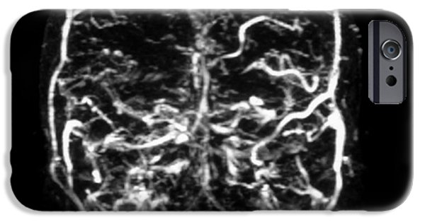 Abnormal iPhone Cases - Mri Of Venogram Of Dural Sinus iPhone Case by Medical Body Scans