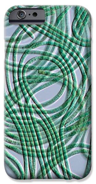 Prokaryote iPhone Cases - Oscillatoria Cyanobacteria, Dic Image iPhone Case by Sinclair Stammers