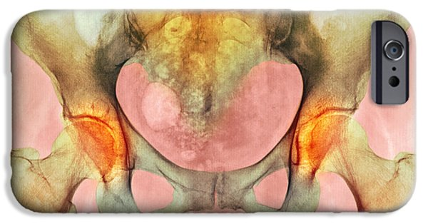 Disorder iPhone Cases - Osteoarthritis Of Hip Joints, X-ray iPhone Case by