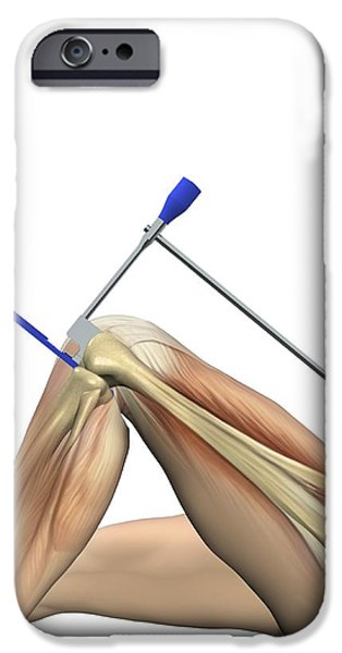 Partial Knee Replacement, Artwork iPhone Case by D & L Graphics