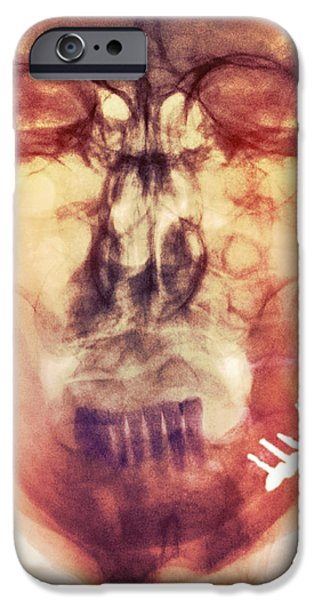 Disorder iPhone Cases - Pinned Broken Jaw, X-ray iPhone Case by