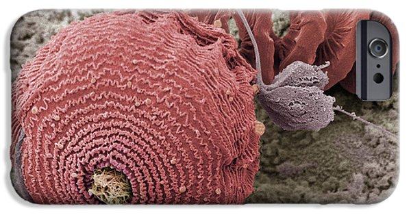Protozoa iPhone Cases - Protozoan, Sem iPhone Case by Steve Gschmeissner