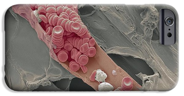 Scanning Electron Microscope Photographs iPhone Cases - Ruptured Venule, Sem iPhone Case by Steve Gschmeissner