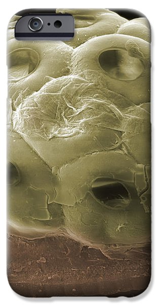 Sem Of A Head Lice Eggs iPhone Case by Ted Kinsman