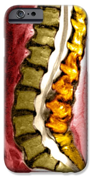 Spine Degeneration, Mri Scan iPhone Case by Du Cane Medical Imaging Ltd