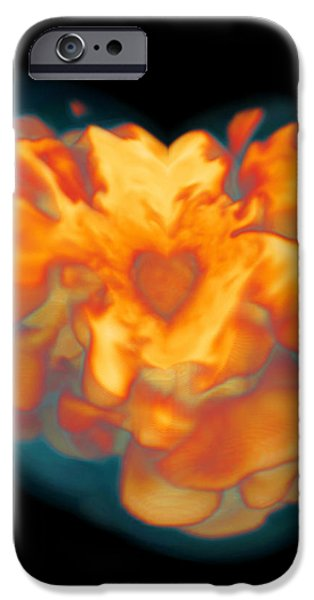 Supernova Explosion iPhone Case by Leonhard Scheck