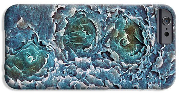 Sweat Pore iPhone Cases - Sweat Glands, Sem iPhone Case by Steve Gschmeissner