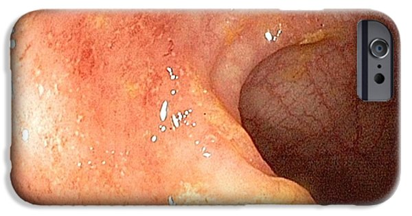 Endoscopy iPhone Cases - Ulcerative Proctitis In The Rectum iPhone Case by Gastrolab