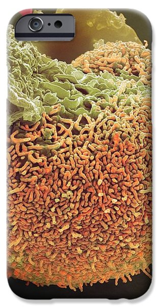 Urine Infection, Sem iPhone Case by Steve Gschmeissner