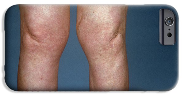 Disorder iPhone Cases - View Of Knees Affected By Osteoarthritis iPhone Case by