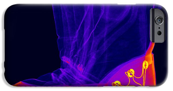 Electronic iPhone Cases - X-ray Of A Childs Light-up Boot iPhone Case by Ted Kinsman