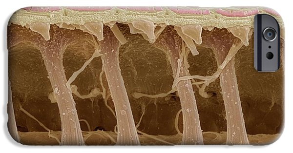 Scanning Electron Microscope Photographs iPhone Cases - Inner Ear Hair Cells, Sem iPhone Case by Steve Gschmeissner