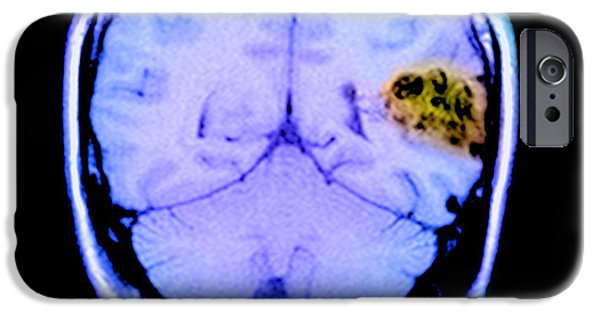 Abnormal iPhone Cases - Mri Of Brain Avm iPhone Case by Medical Body Scans