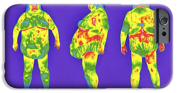 Disorder iPhone Cases - Obese Woman, Thermogram iPhone Case by Tony Mcconnell