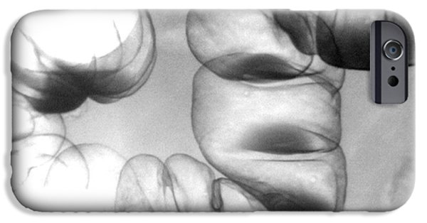 Intestines iPhone Cases - Normal Double Contrast Barium Enema iPhone Case by Medical Body Scans