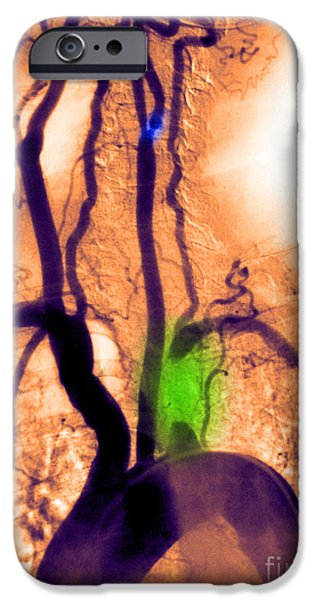 Abnormal Photographs iPhone Cases - Aortic Arch Angiogram iPhone Case by Medical Body Scans