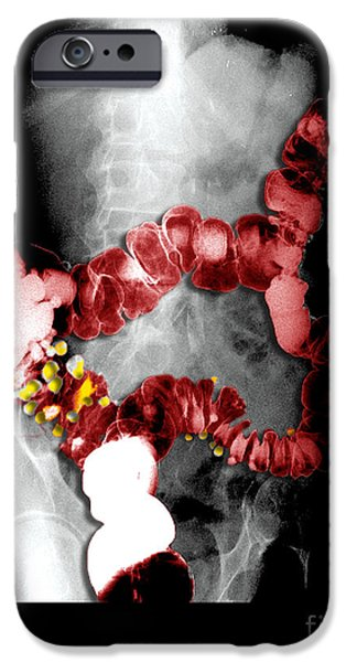 Large Intestine iPhone Cases - Barium Enema Showing Diverticulosis iPhone Case by Medical Body Scans