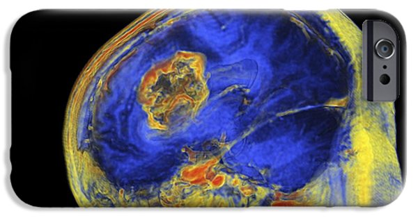 3-d iPhone Cases - Brain Tumour, 3-d Mri Scan iPhone Case by Pasieka