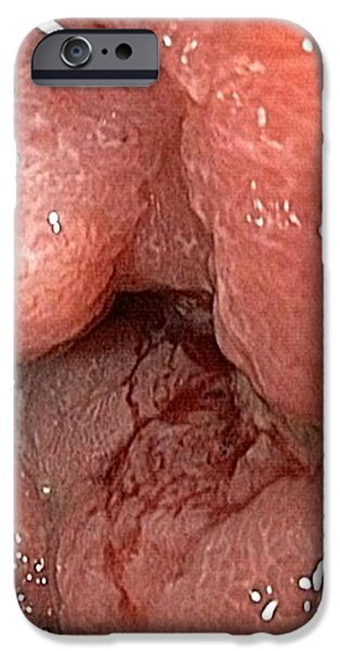Cancer Of The Rectum iPhone Case by Gastrolab