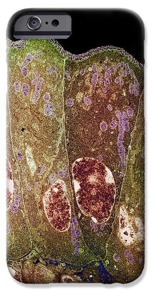 Microvillus iPhone Cases - Duodenum Secretory Cells iPhone Case by Steve Gschmeissner