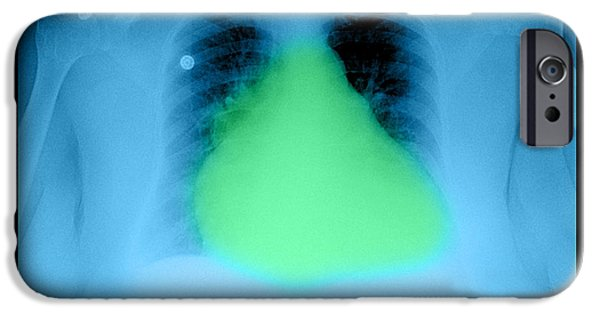 Abnormal iPhone Cases - Enlarged Heart On Chest X-ray iPhone Case by Medical Body Scans