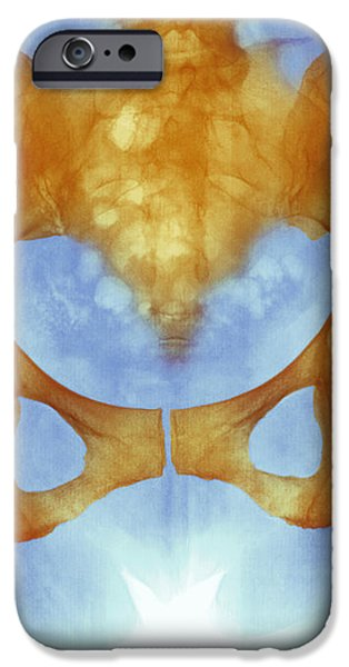 Healthy Hip Bones, X-ray iPhone Case by