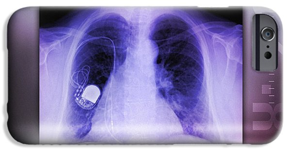 Electrical Equipment iPhone Cases - Heart Pacemaker, X-ray iPhone Case by Miriam Maslo