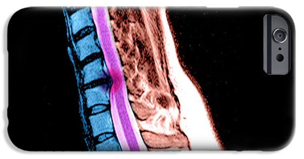 Abnormal iPhone Cases - Herniated Disc In Cervical Spine iPhone Case by Medical Body Scans