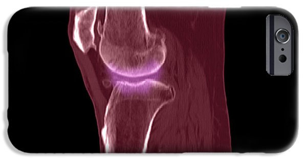 Medical Scan iPhone Cases - Knee Showing Osteoporosis iPhone Case by Medical Body Scans