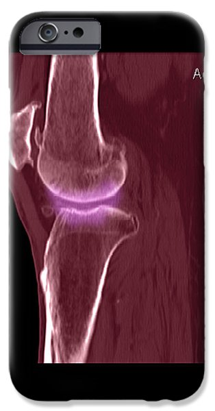 Knee Showing Osteoporosis iPhone Case by Medical Body Scans