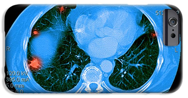 Abnormal iPhone Cases - Metastatic Cancer Of The Lungs iPhone Case by Medical Body Scans