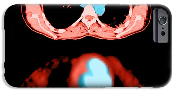 Medical Scan iPhone Cases - Metastatic Lymph Node Mass iPhone Case by Medical Body Scans