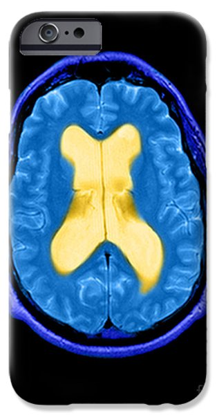 Abnormal Photographs iPhone Cases - Mri Communicating Hydrocephalus Nph iPhone Case by Medical Body Scans