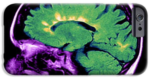 Disorder iPhone Cases - Mri Of Multiple Sclerosis iPhone Case by Medical Body Scans