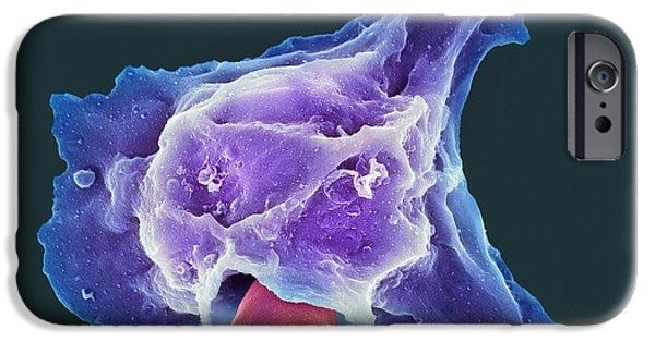 Engulfing iPhone Cases - Neutrophil Engulfing Thrush Fungus, Sem iPhone Case by