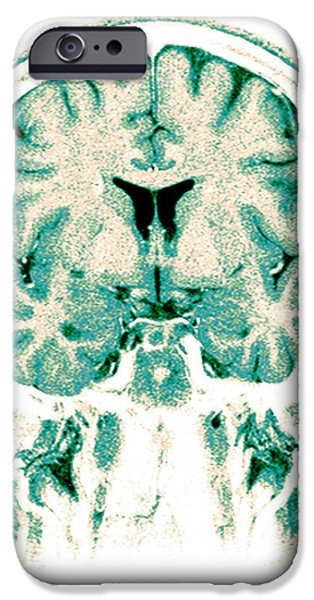 Normal Coronal Mri Of The Brain iPhone Case by Medical Body Scans