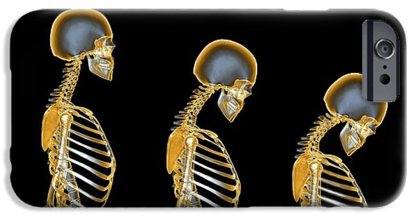 Disorder iPhone Cases - Osteoporosis iPhone Case by Pasieka