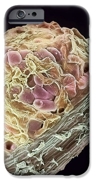 Root Nodule iPhone Case by Dr Jeremy Burgess