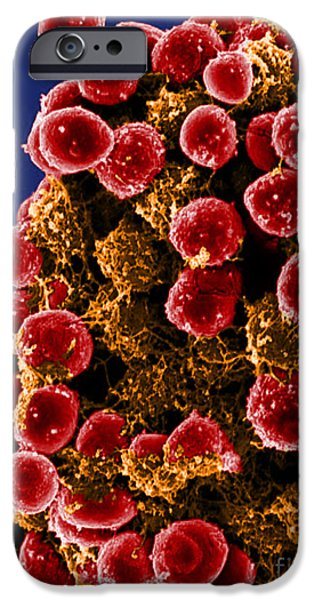 Microbiology Photographs iPhone Cases - Staphylococcus Epidermidis Bacteria, Sem iPhone Case by Science Source