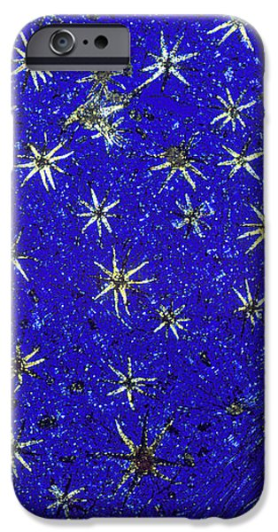 Stellate Leaf Hairs, Light Micrograph iPhone Case by Dr Keith Wheeler