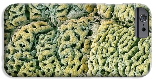 Mucosa iPhone Cases - Stomach Lining With Gastric Pits, Sem iPhone Case by Steve Gschmeissner