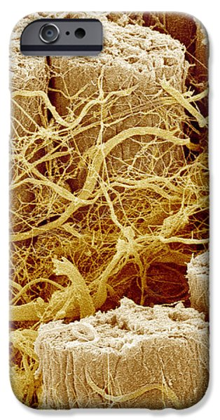 Trachea Muscle, Sem iPhone Case by Susumu Nishinaga