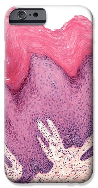 Abnormal iPhone Cases - Wart,, Light Micrograph iPhone Case by Steve Gschmeissner