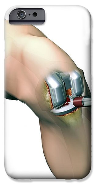 Woundcare Gel Therapy, Artwork iPhone Case by D & L Graphics