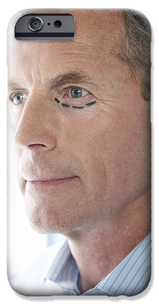 Beauty Mark Photographs iPhone Cases - Cosmetic Surgery iPhone Case by Adam Gault