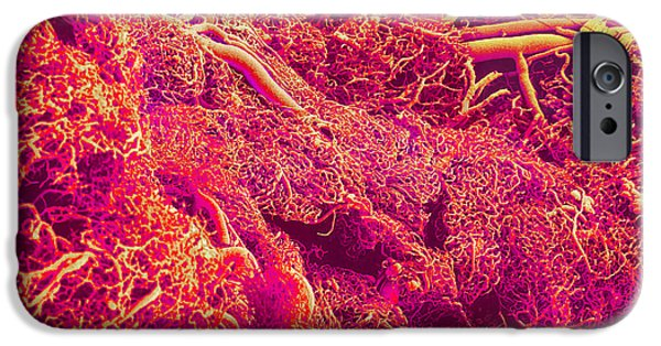 Sem iPhone Cases - Blood Vessels, Sem iPhone Case by Susumu Nishinaga