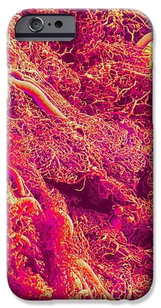 Blood Vessels, Sem iPhone Case by Susumu Nishinaga