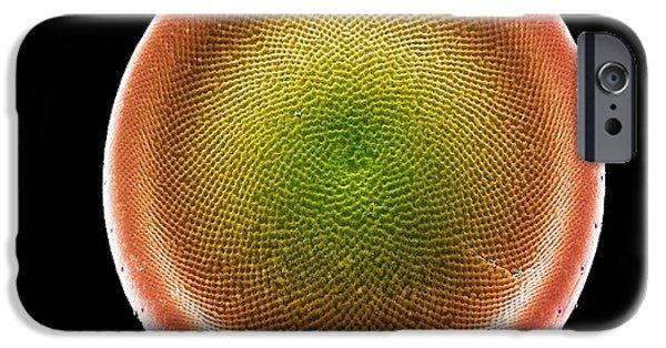 Diatoms iPhone Cases - Diatom Alga, Sem iPhone Case by Steve Gschmeissner