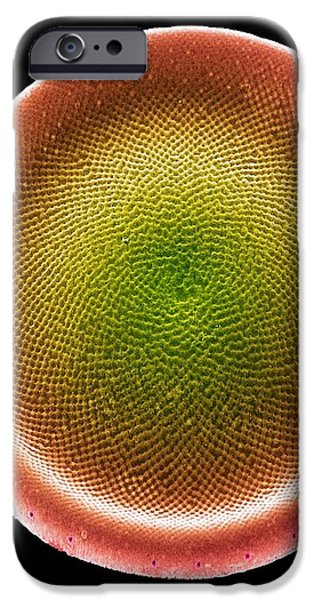 Diatom Alga, Sem iPhone Case by Steve Gschmeissner
